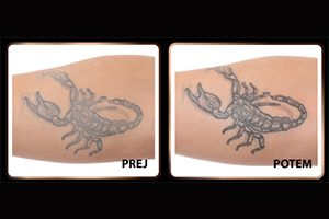 krema za njegu tetovaže